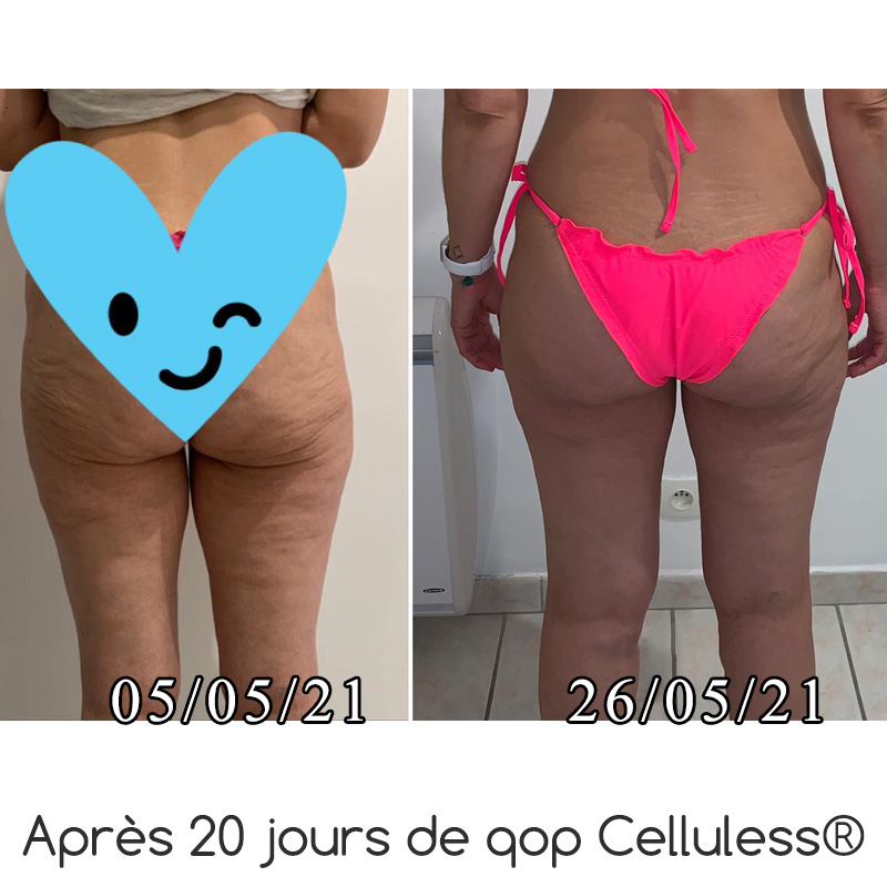 Celluless Booster Avant/Après