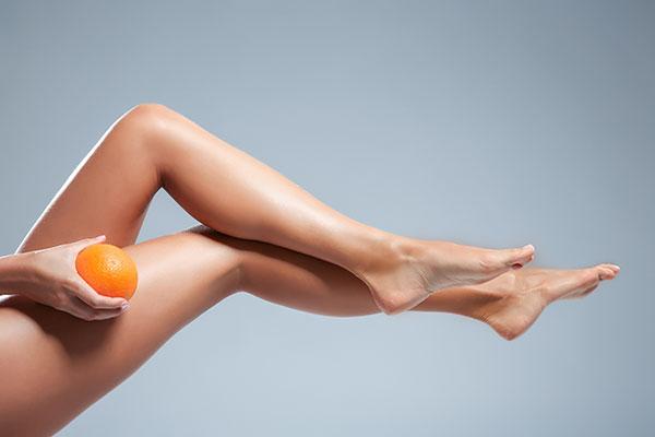 Comment lutter efficacement contre la cellulite ?